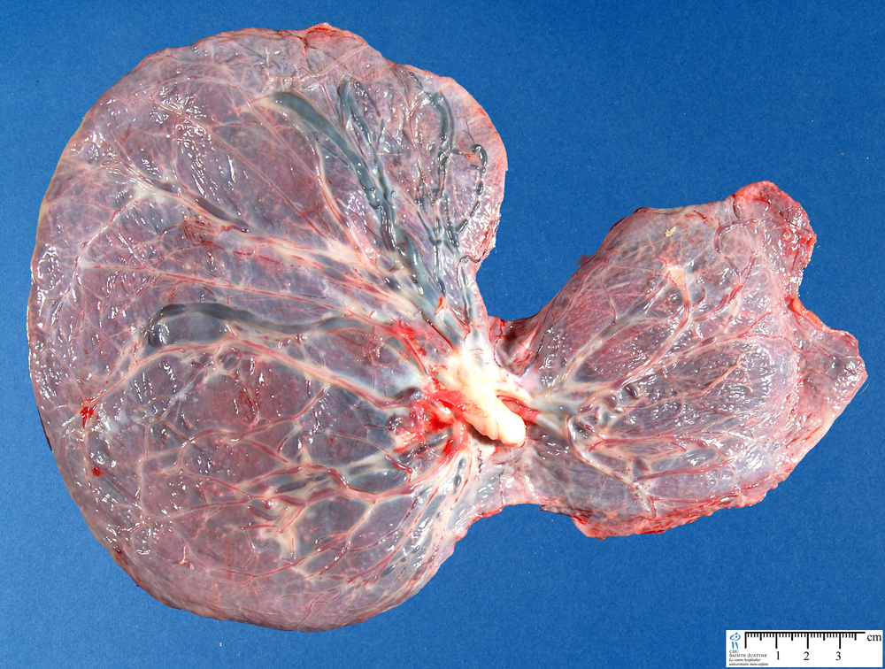 Placenta - Humpath Com