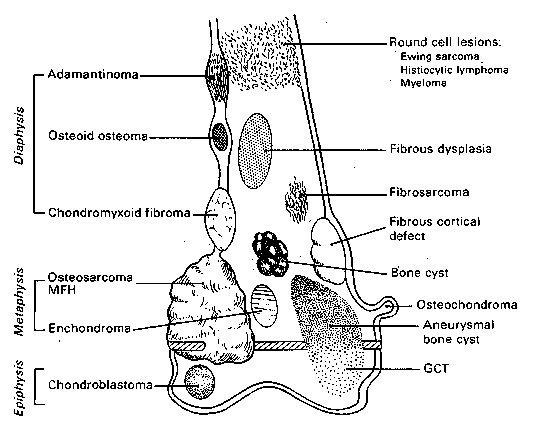 bone tumors - humpath com