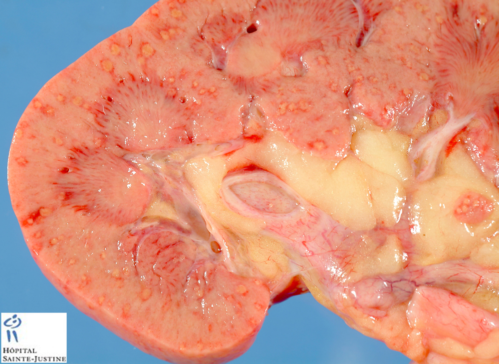systemic fungal infection symptoms