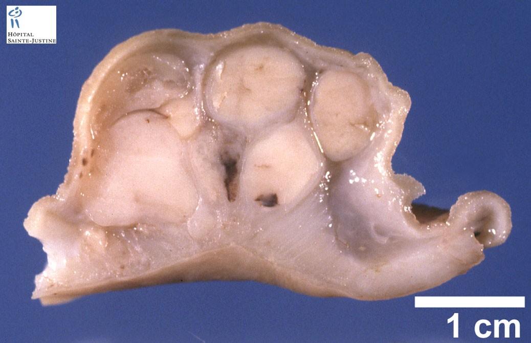 gastrointestinal stromal tumor - Humpath.com - Human pathology