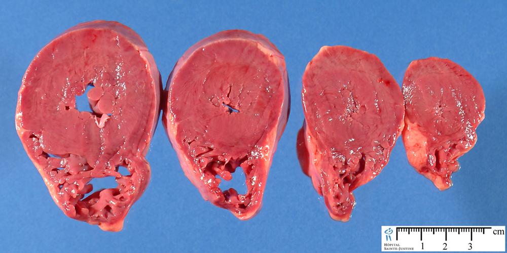 concentric cardiac hypertrophy humpath com human pathology