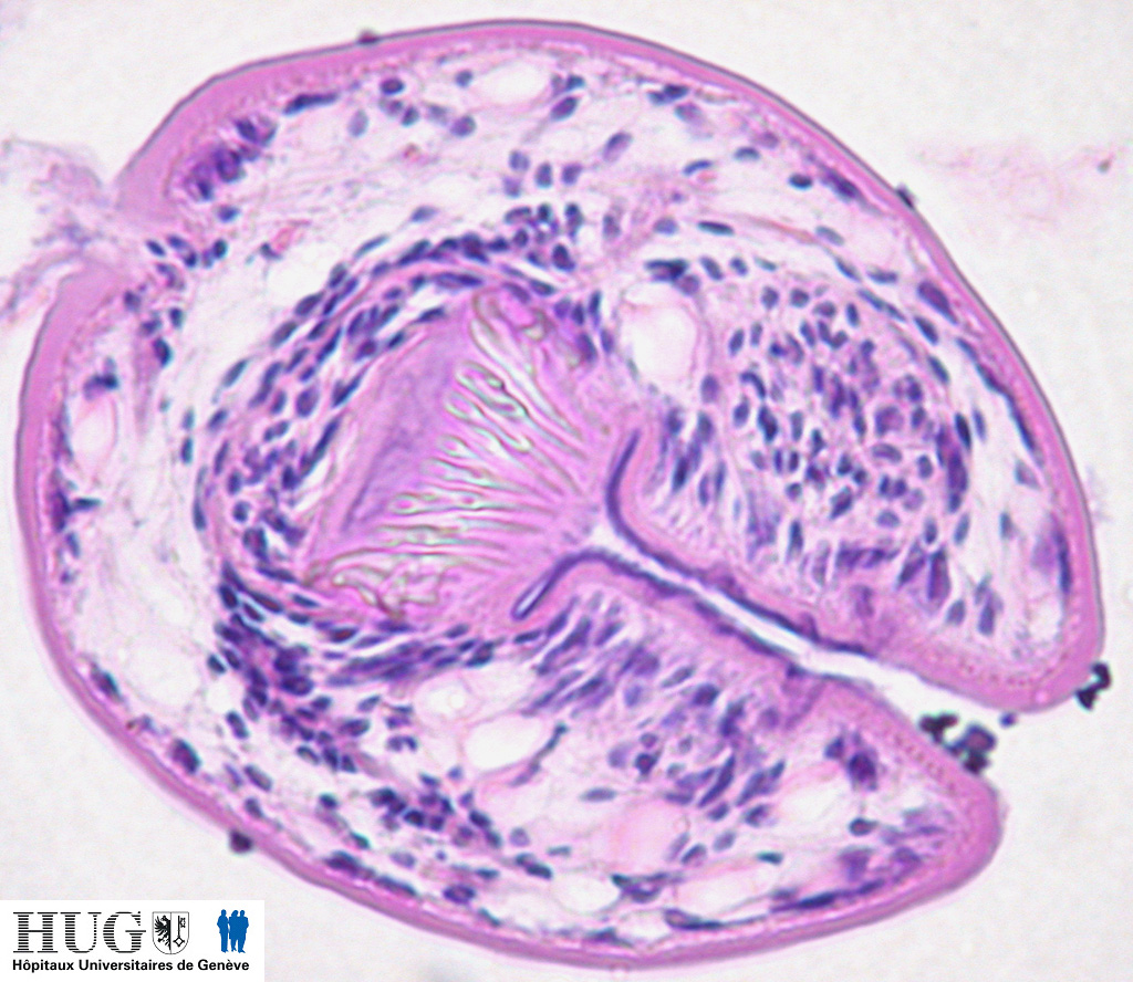 Image Gallery echinococcus cyst
