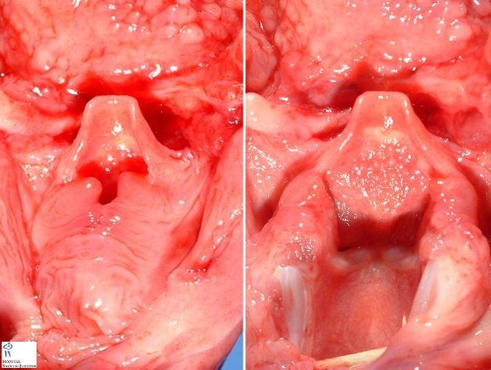 Larynx Hypopharynx