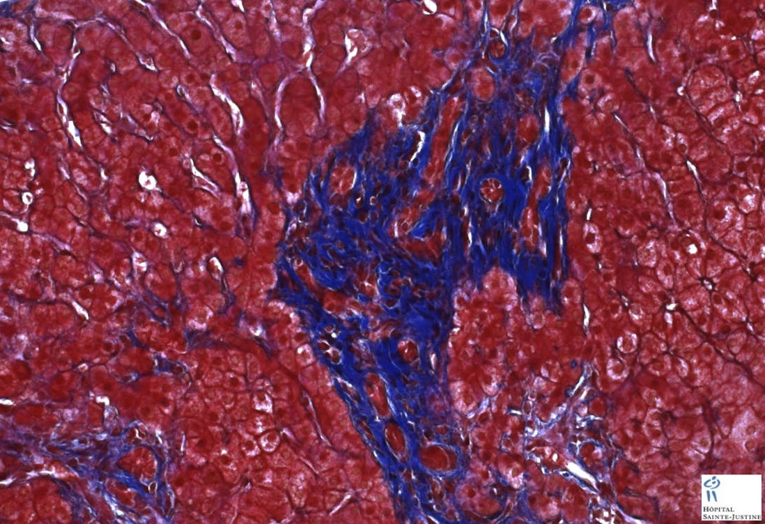 nephronophthisis-associated liver disease