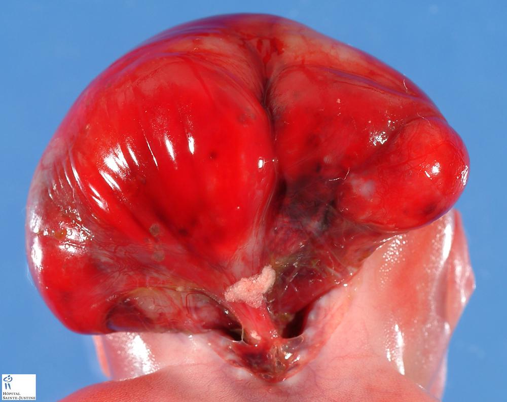 occipital encephalocele - Humpath.com - Human pathology  occipital encep...