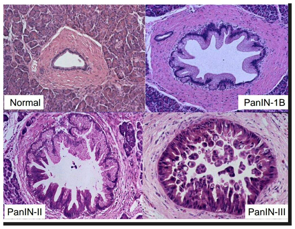 pancreatic intraepithelial neoplasia - Humpath.com - Human