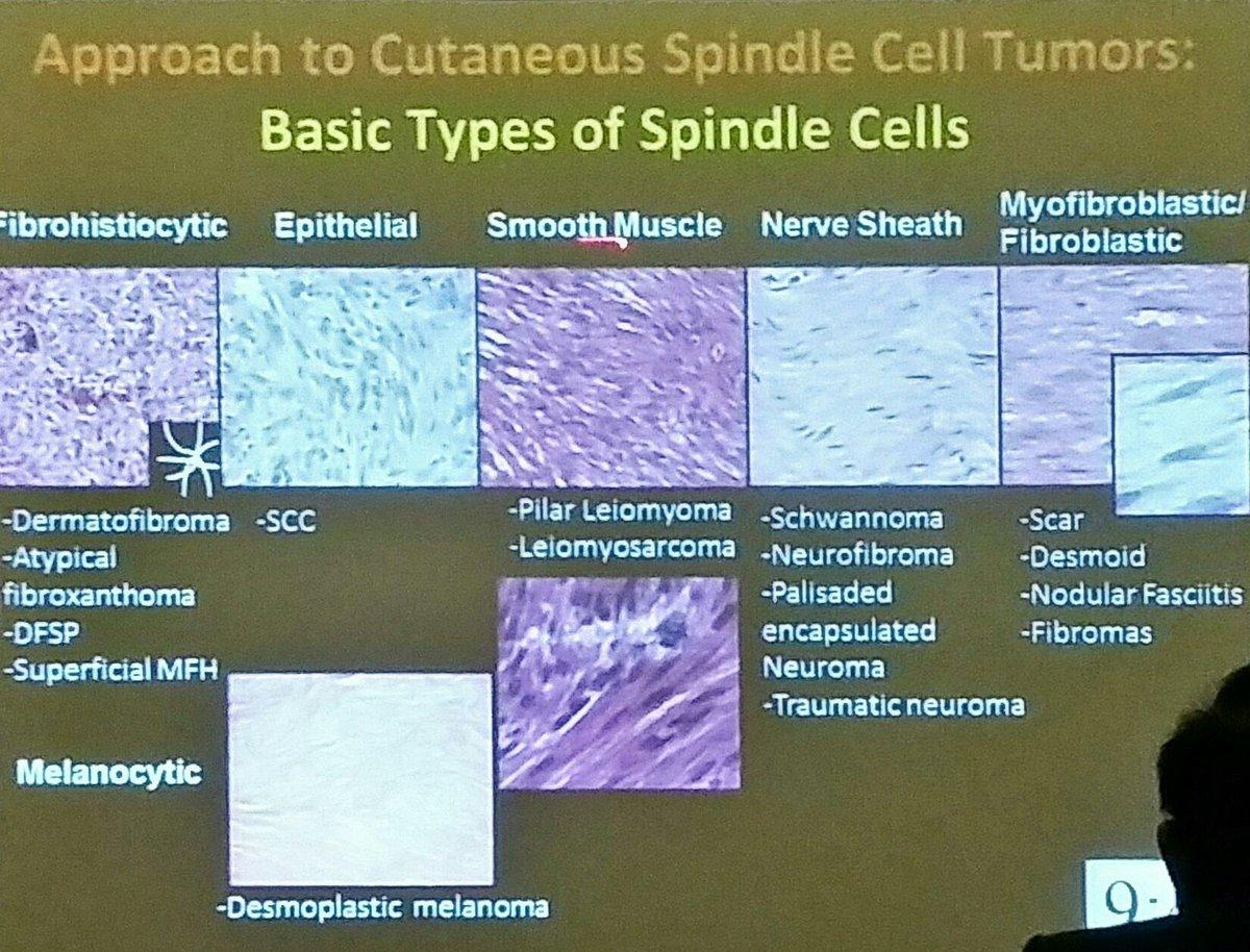 Fusiform Cell Tumors - Humpath Com