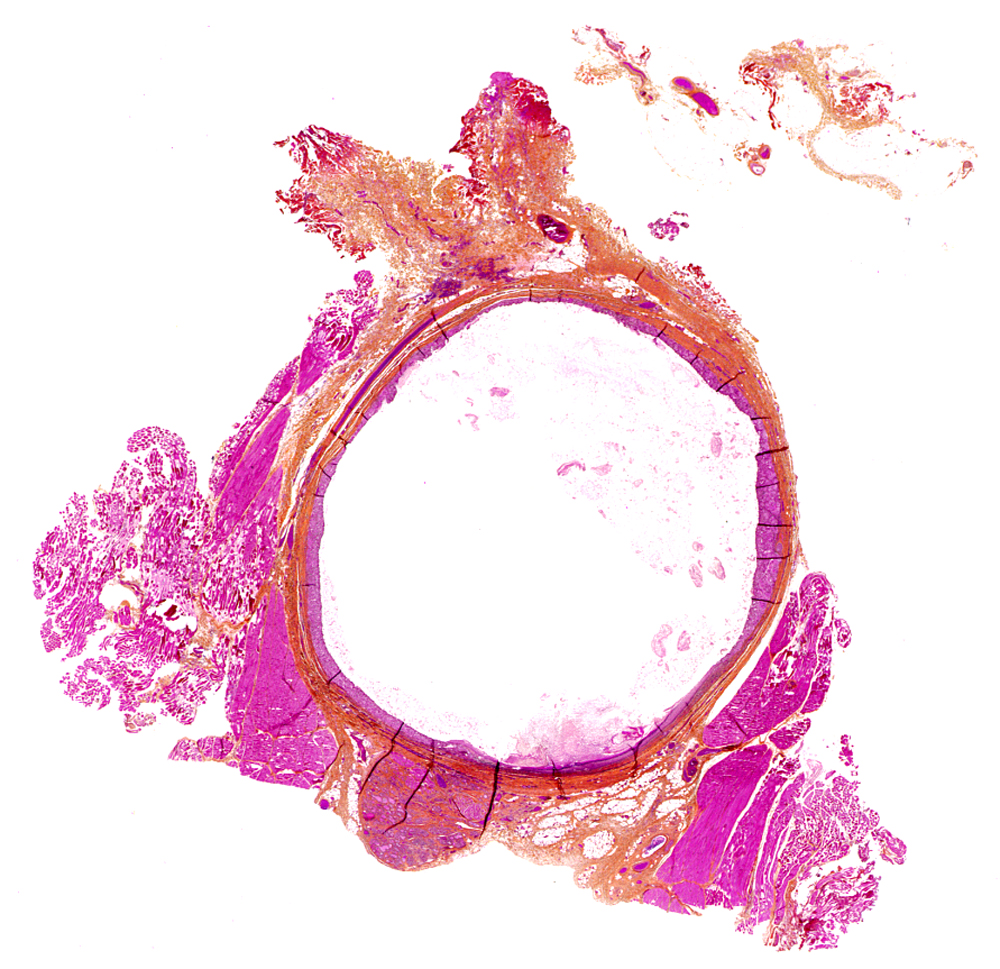 Pathology outlines thyroglossal duct cyst