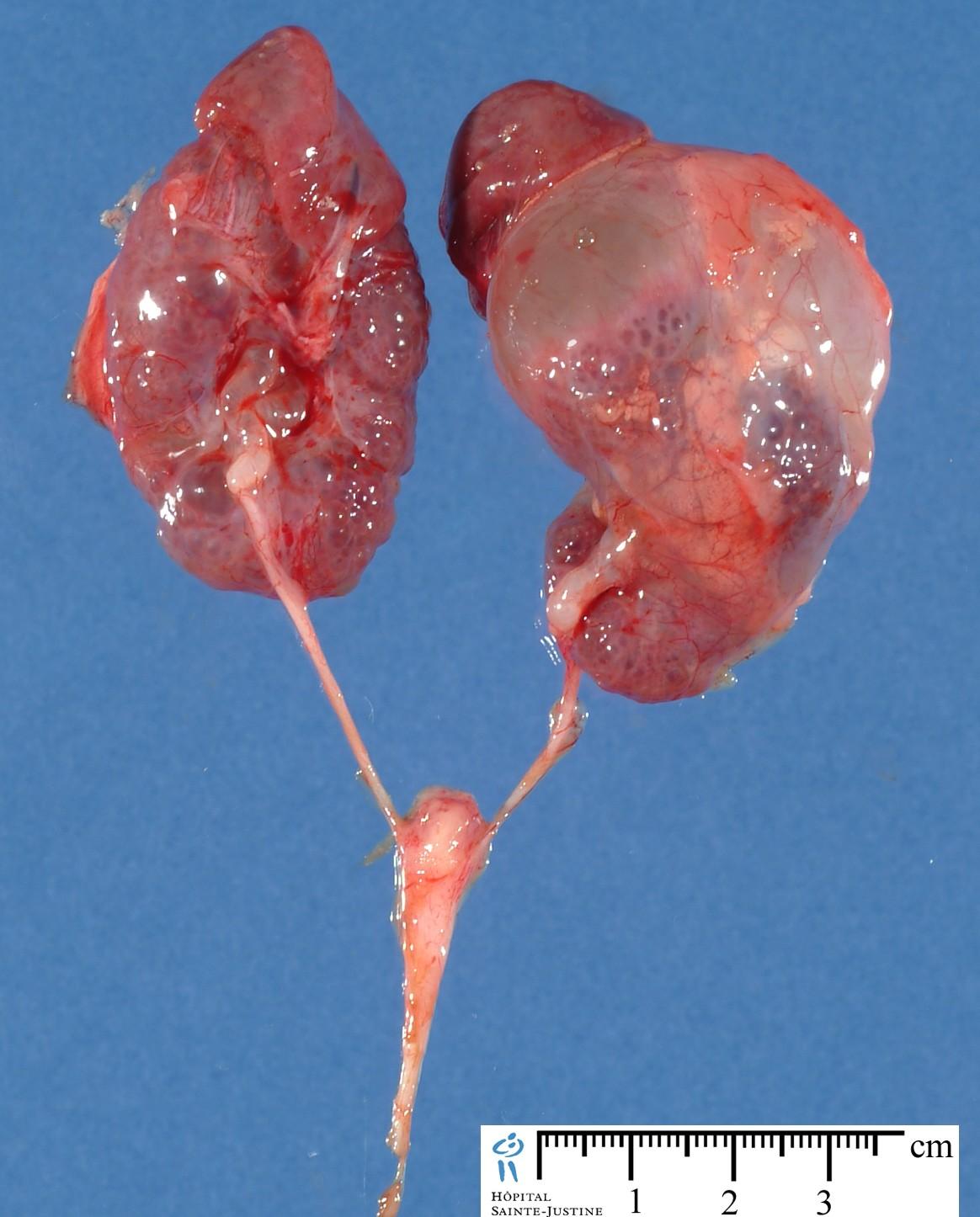 Fetal Urinoma - Humpath Com