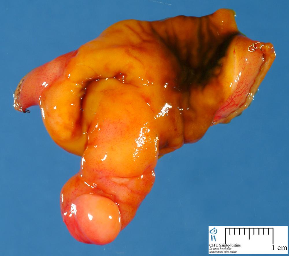Small Intestine: Meckel Diverticulum
