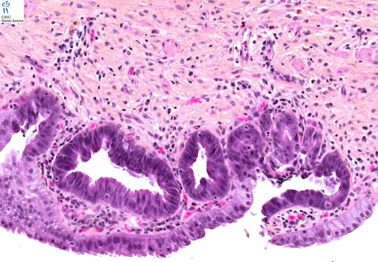 biliary epithelial dysplasia - Humpath.com - Human pathology