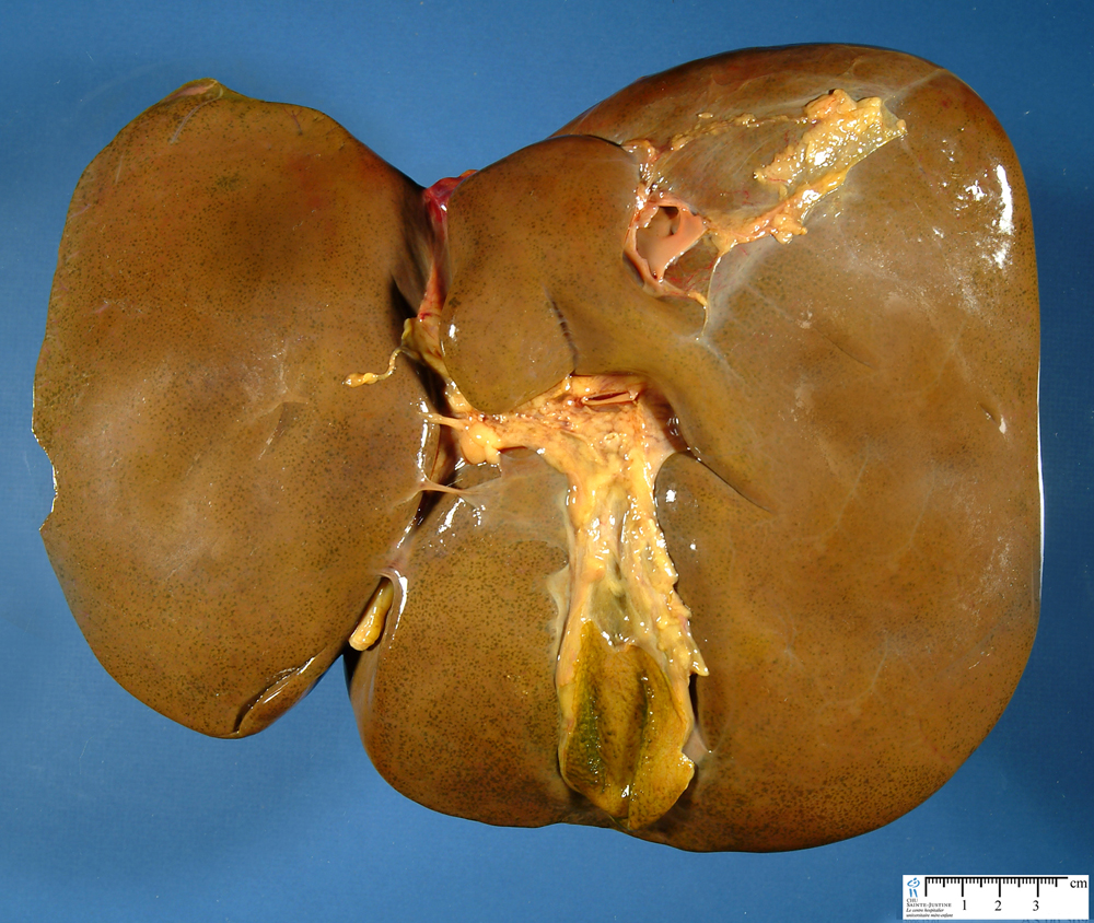 cholestatic liver - Humpath.com - Human pathology