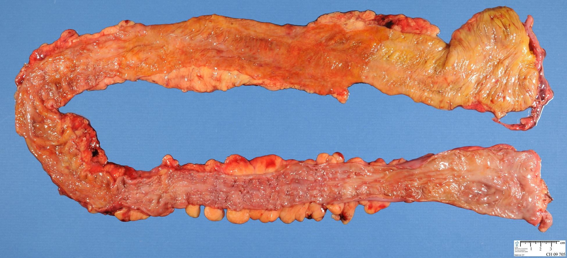 Ileitis: When It Is Not Crohn's Disease - PubMed Central (PMC)