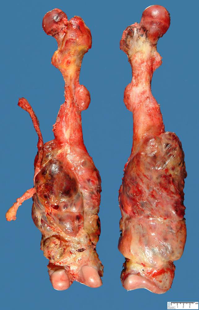 Jpg Femoral Osteosarcoma