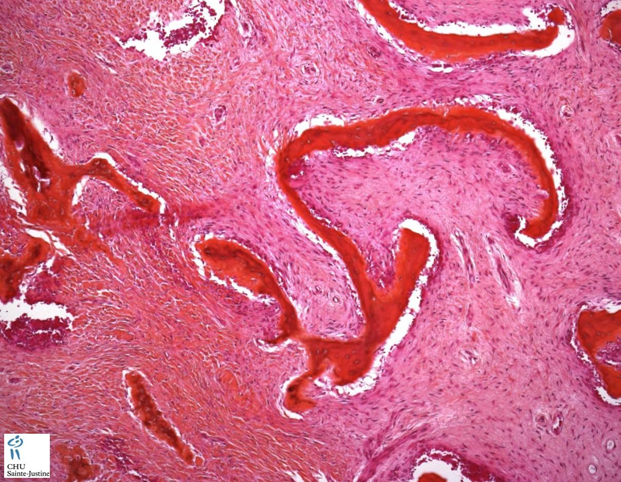 fibrous dysplasia - Humpath.com - Human pathology