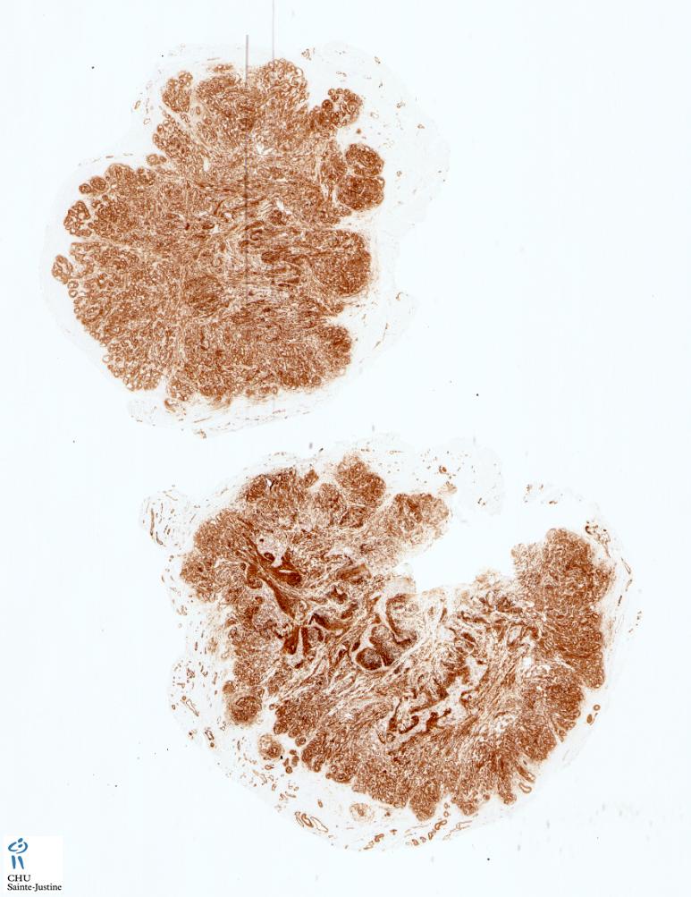 vascular tumors with lobular architecture - humpath com