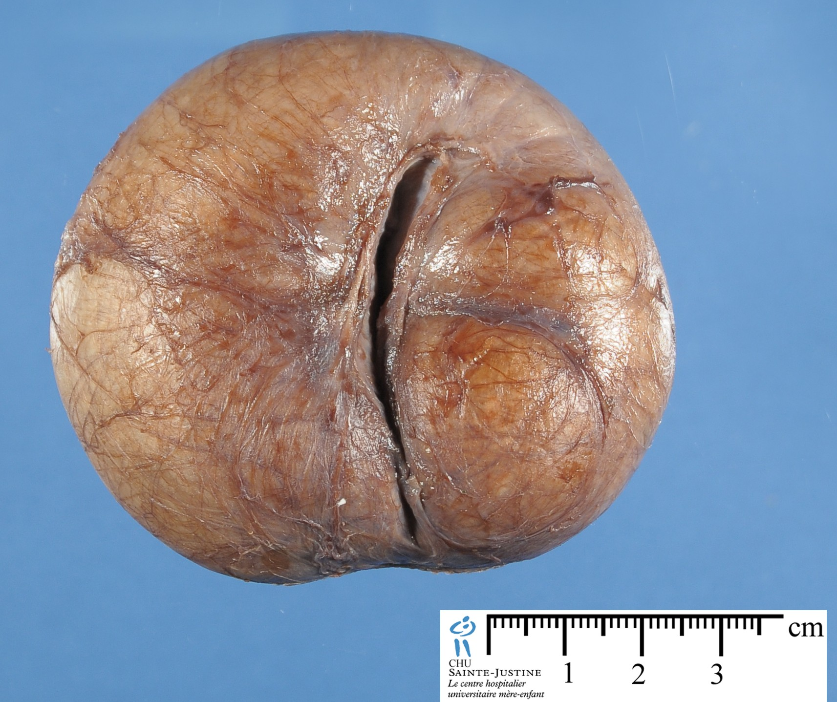Pictures of cysts on penis