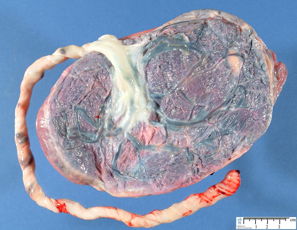 long insertion of the umbilical cord - Humpath.com - Human ... | 1000 x 776 jpeg 856kB
