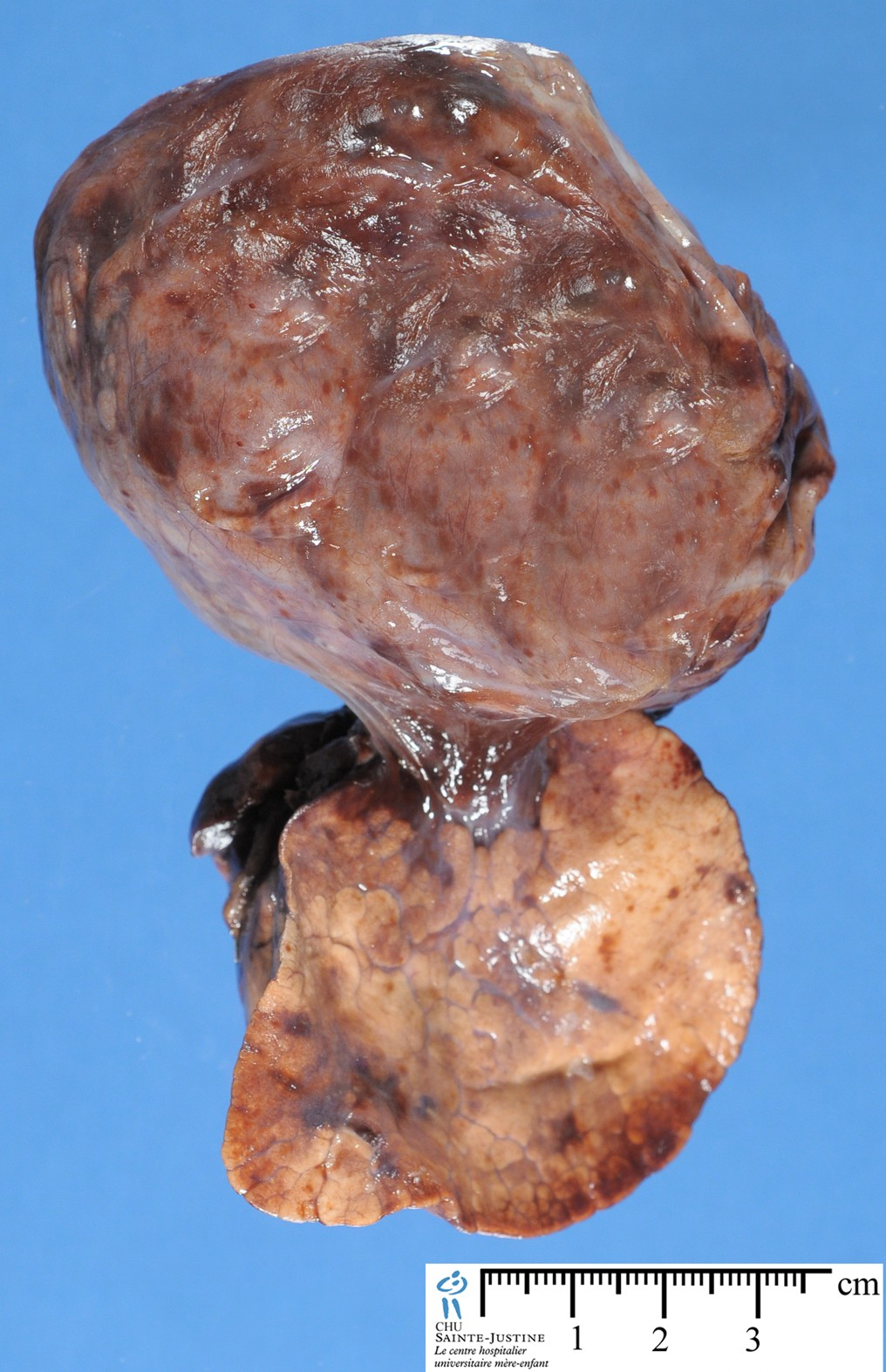 Jpg Pleuropulmonary Blastoma Ab