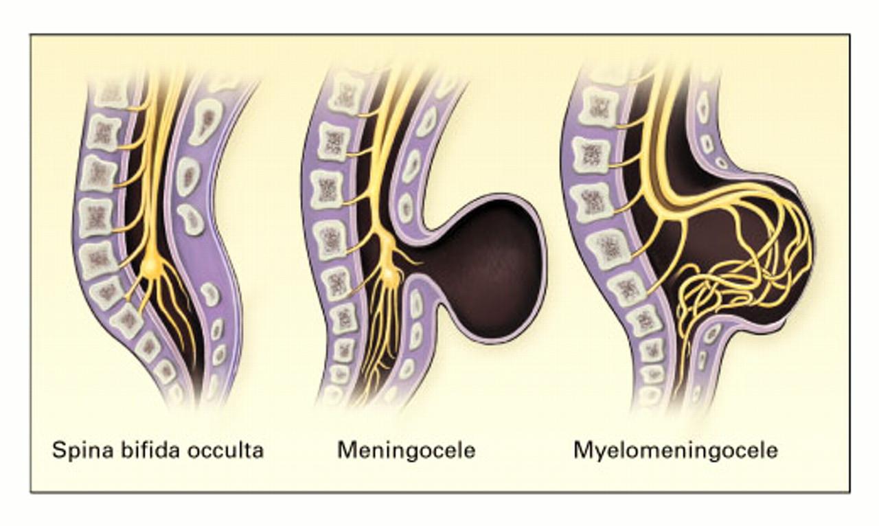 Spina bifida - Symptoms and causes - Mayo Clinic
