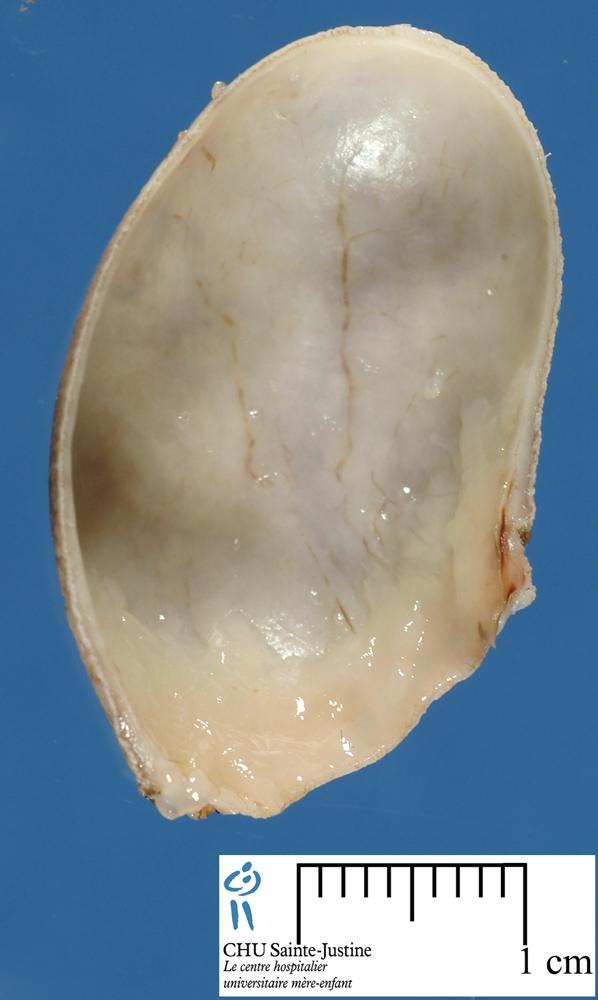 vagina From clitoris to