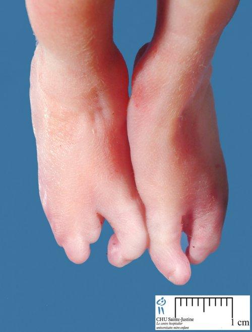 ectrodactyly - Humpath.com - Human pathology