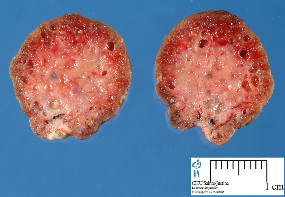 Benign Tumor Skin