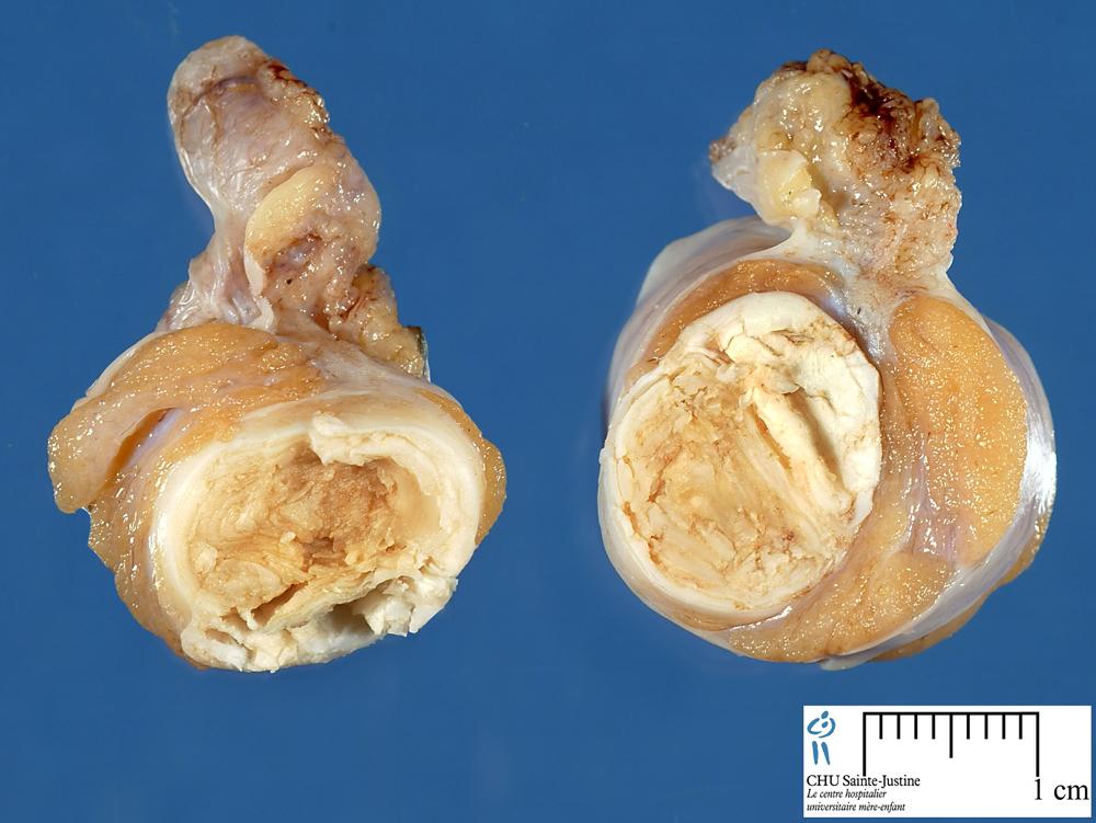 dermoid cyst - Humpath.com - Human pathology